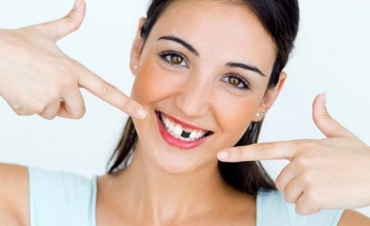 Kaybedilen dişler nasıl tamamlanmalı kestirilmeli mi implant mı? Uzmanlar açıklıyor!